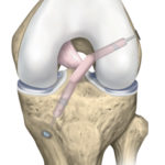knee-arthroscopy-2