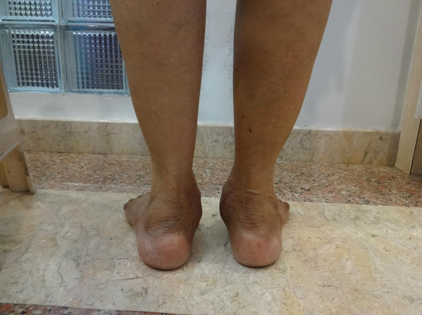 FLAT FEET – PES PLANUS Treatment at Udai Omni Hospital