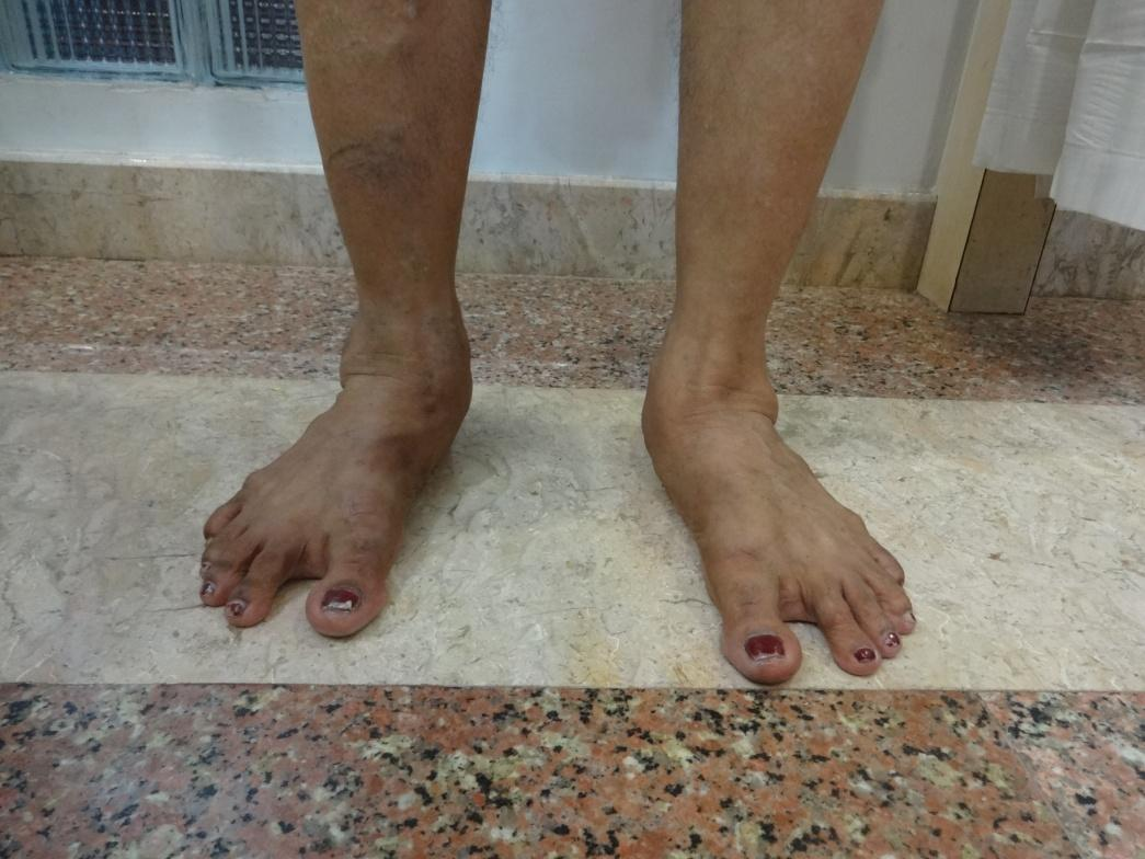 flat feet Treatment at Udai Omni Hospital